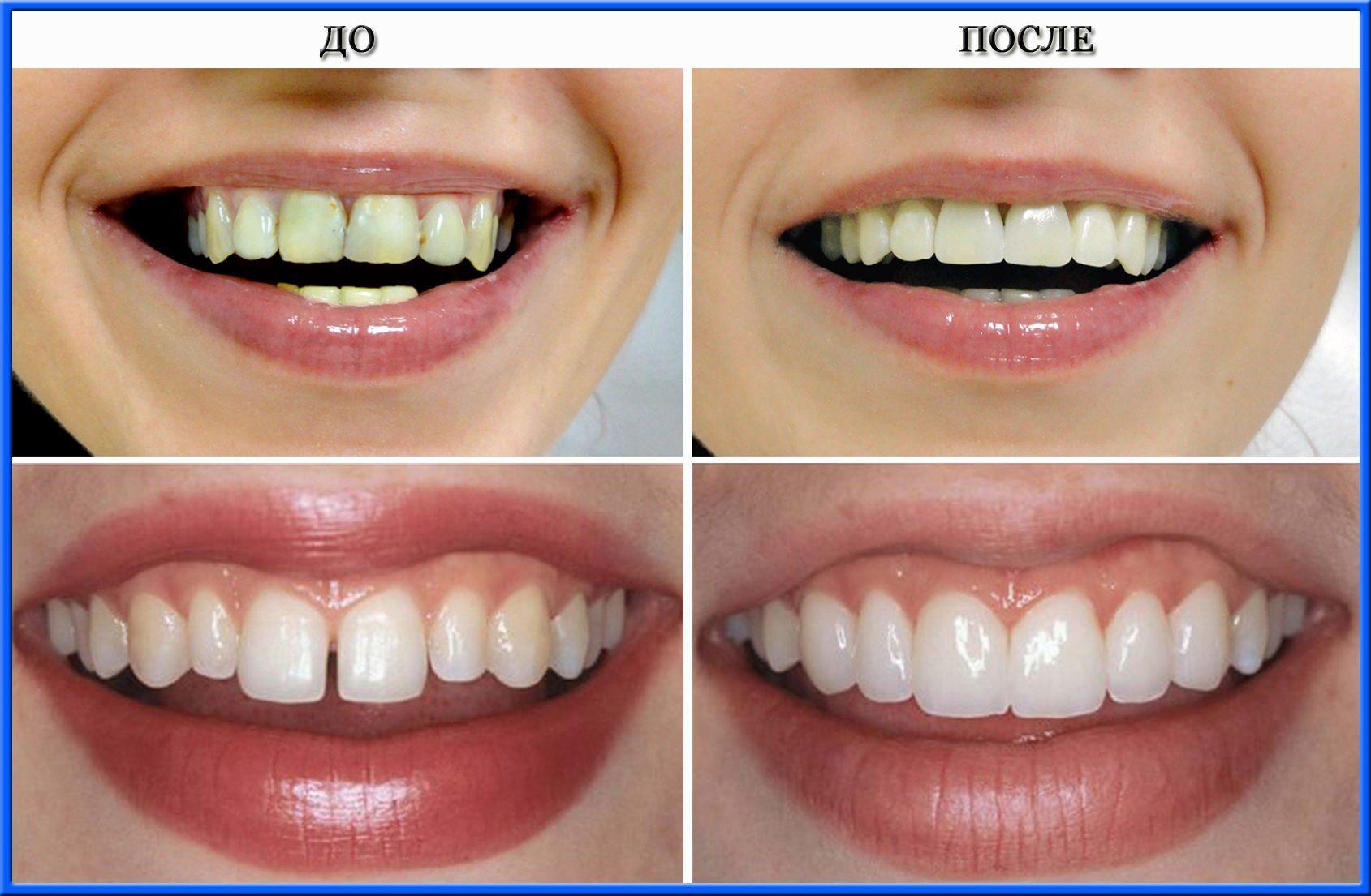 esteticheskaya restavratsiya - Художественная реставрация зубов – неотъемлемая часть эстетической стоматологии