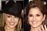 celebrities-gone-dental-before-and-after-photos-of-toothy.
